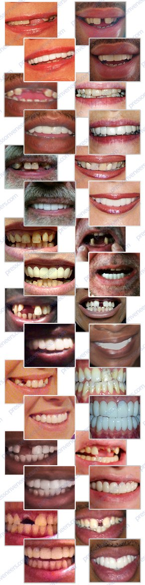 Press On Veneers client before & afters