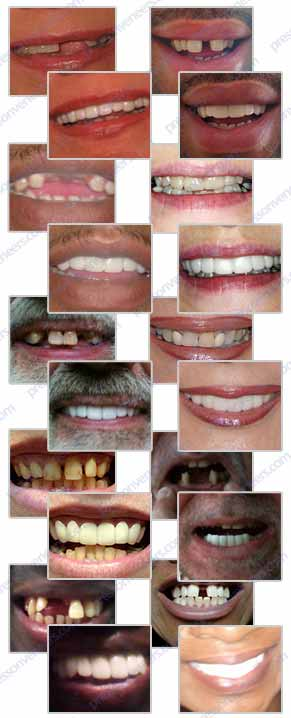 Clip On Veneers http://cliponveneers.com/