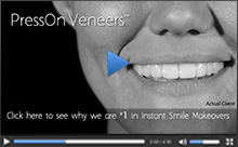 National TV Commercial of Press On Veneers