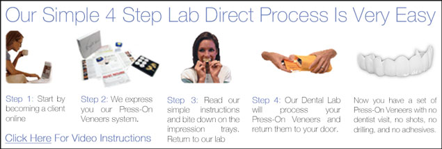 Lab Direct Press On Veneers